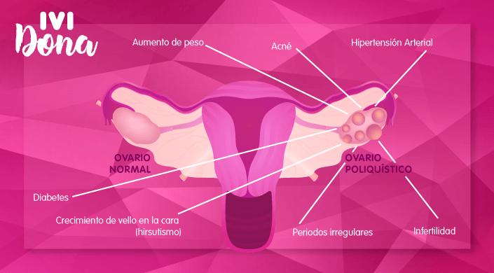 sindrome del ovario poliquistico-portada